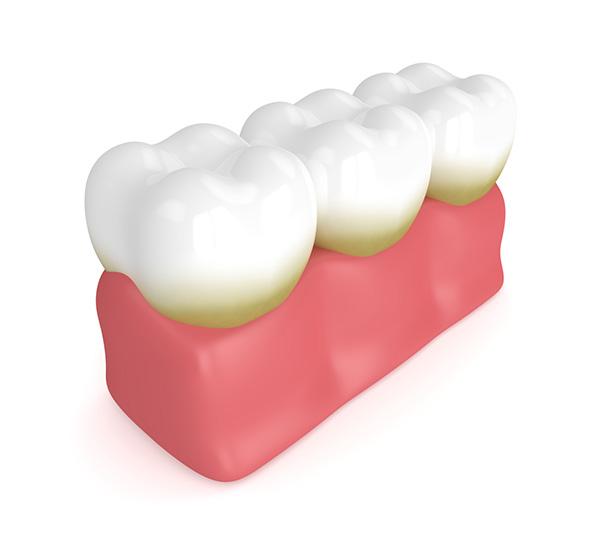 Dental Check-up Hinsdale, Burr Ridge
