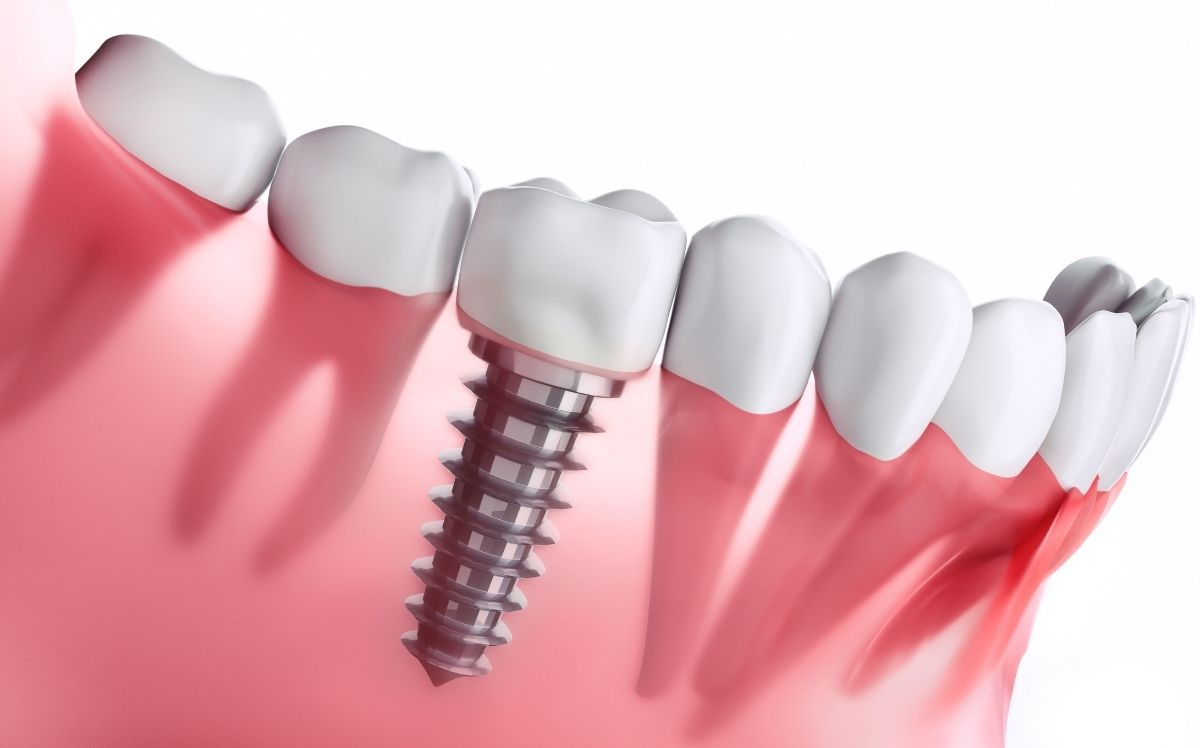 Dental Implants Hinsdale & Burr Ridge