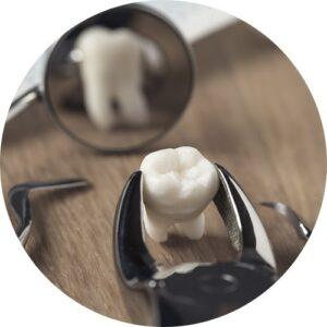 Oral Surgery Hinsdale IL