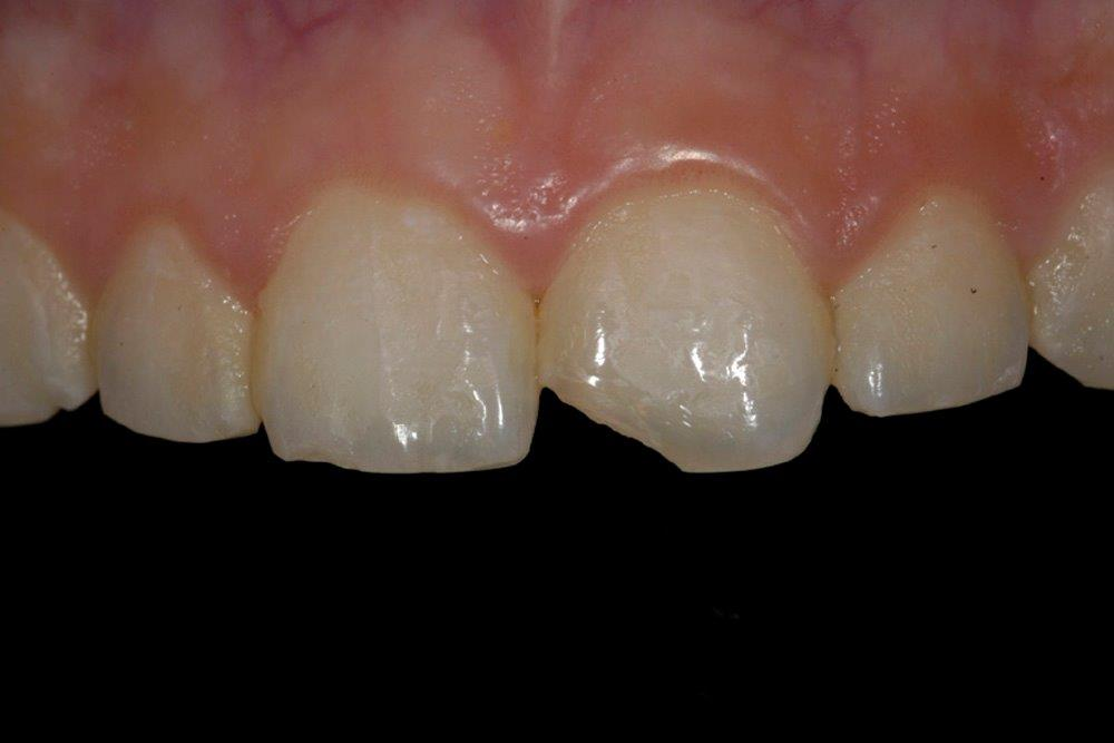 4d Rachel 3 front teeth before gallery